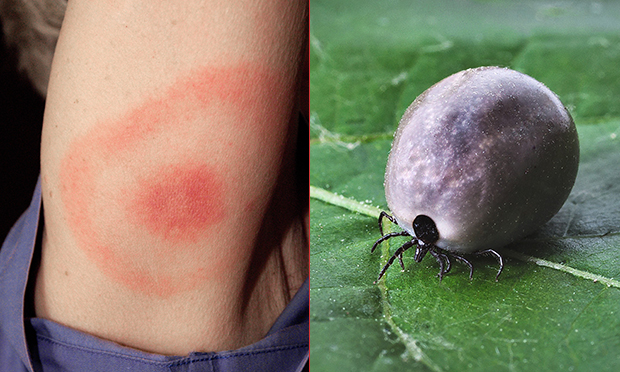 woman catches lyme disease from tick bite at clissold park