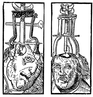 Trepanning is an ancient process, as this 16th century engraving illustrates. Image: Wikimedia Commons